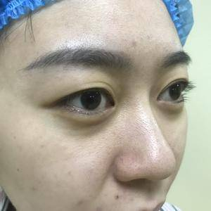 黛美双眼皮眼睛整形