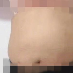 腹部埋线减肥-新式减肥法