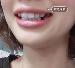 拔牙。。。