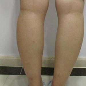 打造曲线身材-小腿吸脂
