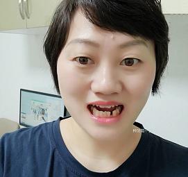 种植牙。。。