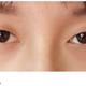 贴双眼皮贴,却成了多眼皮、眼窝凹陷,怎么办?