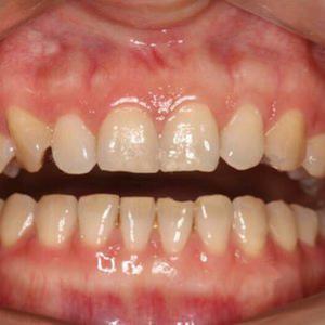 有好一口好牙才能笑口常开