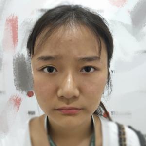 """四川电视台""""歪鼻女孩""""鼻修复"""