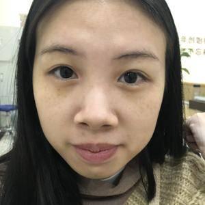 广州健丽综合隆鼻