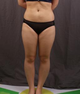 吸脂瘦腰腹大腿