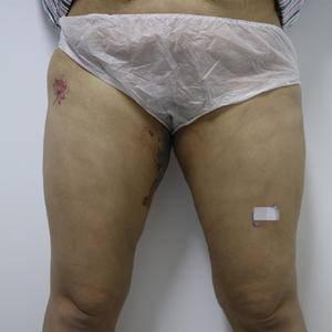 大腿吸脂修复