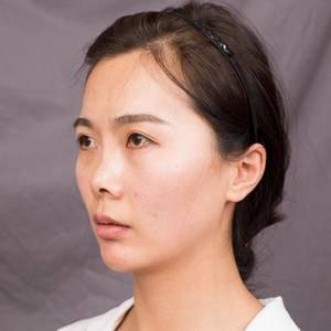 鼻综合 进口韩式生科隆鼻+耳软骨鼻尖