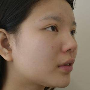 膨体+鼻中隔隆鼻