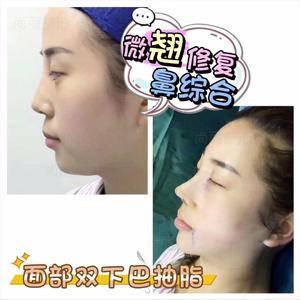 鼻综合修复+面部双下巴吸脂
