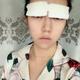 """""""我不是单眼皮,但是眼睛是内双,有时候看起来就像单眼皮一样,所以我决定来做双眼皮手术,我喜欢比较明显的双眼皮,这样眼睛看起..."""