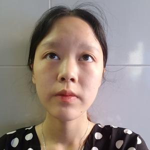 下颌角整形术