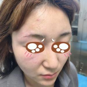 悦Mer_3496211419玻尿酸填充太阳穴术后1天第2页图