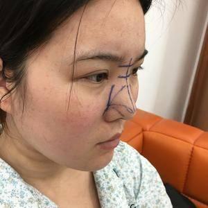 肋软骨鼻综合/隆鼻