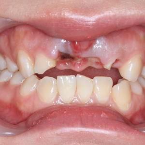 5.1种植牙