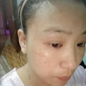 皮肤管理祛斑项目