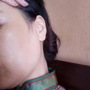 皮肤管理祛斑套餐