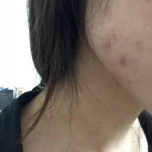 皮肤管理祛痘项目