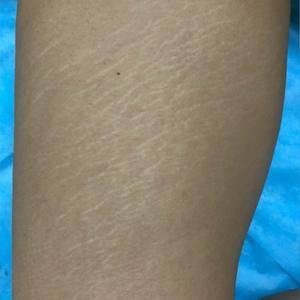 妊娠纹修复