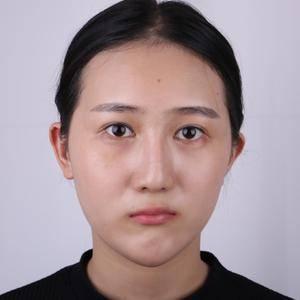 多次鼻综合之后的鼻综合修复血泪分享