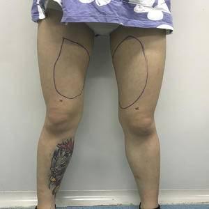 沈阳知音医疗美容    大腿吸脂