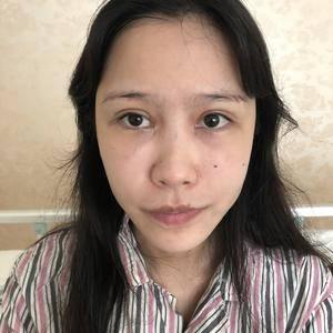 微姿  隆鼻手术 m唇成形术