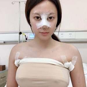 薇薇安我的假体隆胸日记术后3天第2页图
