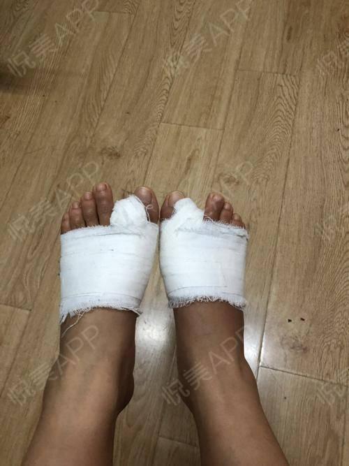 拆包啦,开心的泡了泡脚,回顾整个手术过程,过的还是很快的,现在脚掌窄了很多,也显得不那么瘦骨嶙峋了,右脚最满意,左脚还是...
