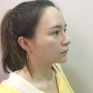 鼻部失败修复+面部吸脂