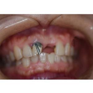 牙根种植治疗