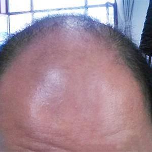 5级种植毛发