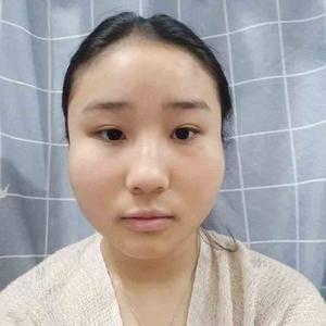 大脸病因颧骨降低术