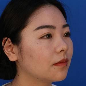 鼻部整形术