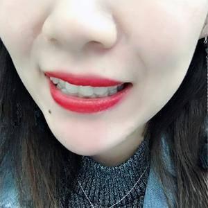 可丽尔隐形牙齿矫正