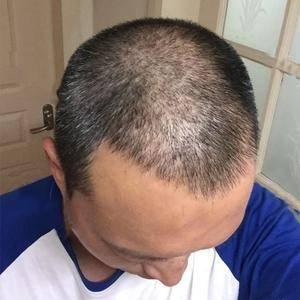 头顶发际线种植