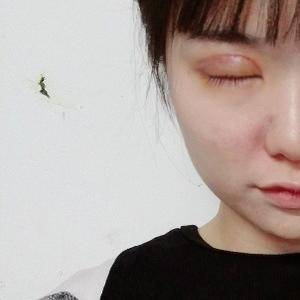 张文鑫重睑术 眼周年轻化手术当天第2页图