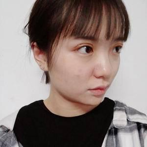 张文鑫重睑术 眼周年轻化手术当天第3页图