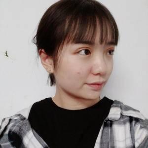张文鑫重睑术 眼周年轻化手术当天第1页图
