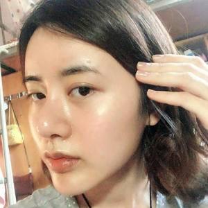 悦Mer_4262616501自体脂肪全脸填充术后7天第2页图
