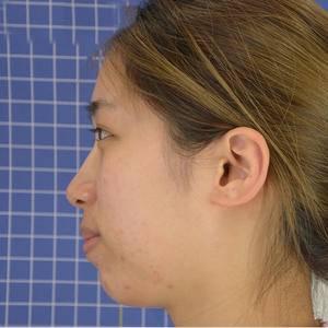 超声时光系统溶脂去双下巴