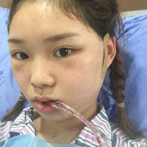 香瓜瓜面部轮廓下颌角整形术后1天第3页图