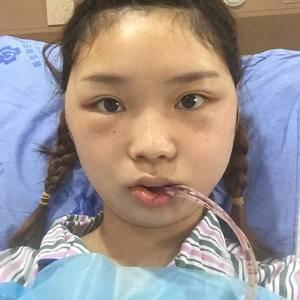 香瓜瓜面部轮廓下颌角整形术后1天第2页图