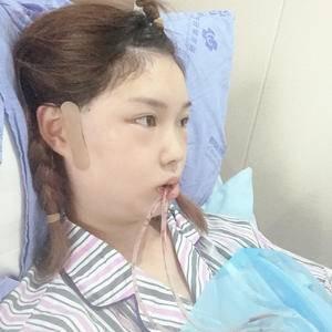 香瓜瓜面部轮廓下颌角整形术后1天第1页图
