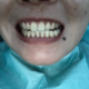 昨天刚刚洗完的牙齿,整体来说挺好的,医生很专业,牙齿当时做完就是酸到不行,其他没有什么,总体来说白了...