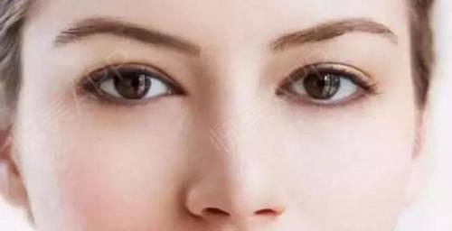 割眼袋需要多少钱?多长时间恢复自然?有什么后遗症危  第1张