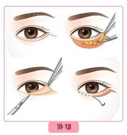 割眼袋需要多少钱?多长时间恢复自然?有什么后遗症危  第7张