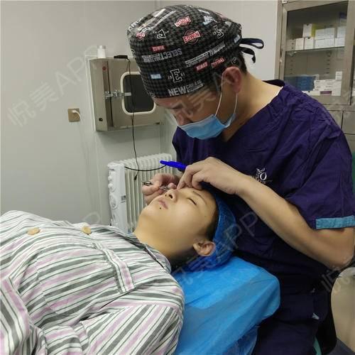 双眼皮修复手术当天_眼整形失败修复手术当天_眼部整形手术当天_柳上惠分享图片1