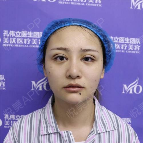 双眼皮修复手术当天_眼整形失败修复手术当天_眼部整形手术当天_柳上惠分享图片2