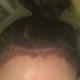 植发后第二天、后脑勺渗出基本没有了、发际线部分也基本结痂,额头还是非常肿胀,植发的区域形状目前来看不...