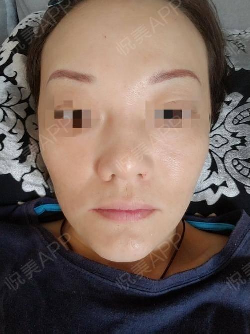 随着年龄的增大面部已经开始下垂了,之前也做过热拉缇可是维持时间最长也就3个月不是很理想,看了评价埋线提升维持至少一年,而...